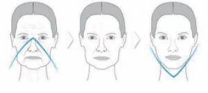 processus-vieillissement-paris-acide-hyaluronique-v-visage