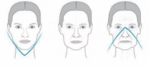 technique-8-points-lift-acide-hyaluronique-vieillissement-visage