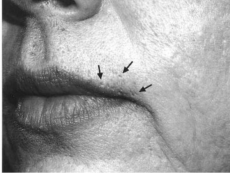 Acne cicatrices legato paris 13